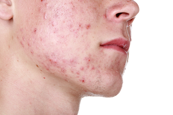 acne adult cause female
