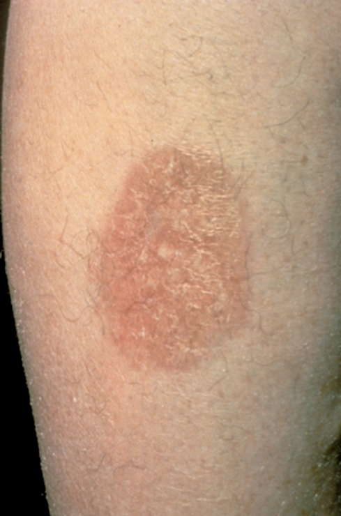 diabetic skin conditions pictures - pictures, photos
