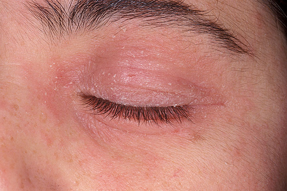 eye rashes on eyelids