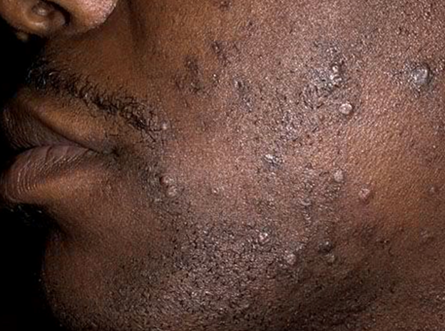What Does Herpes Look Like On Black Skin How To Get Rid