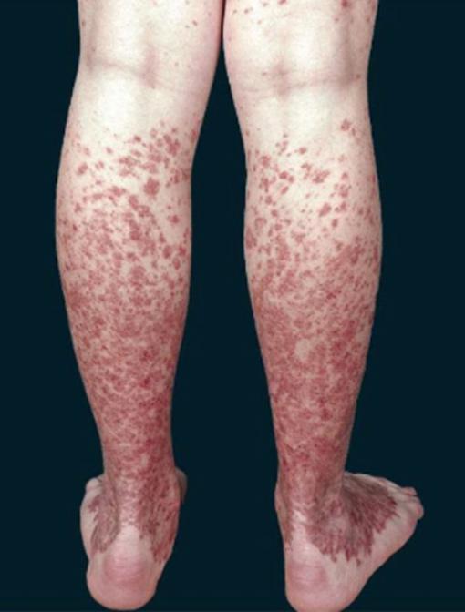 capillaritis legs
