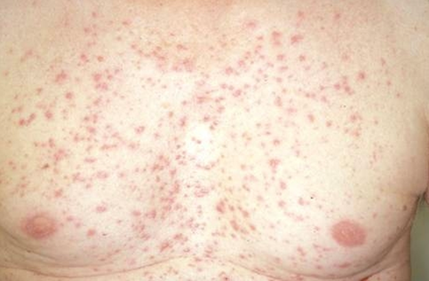 topical steroid treatment for psoriasis
